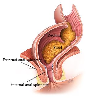 anal muscles plug Medical
