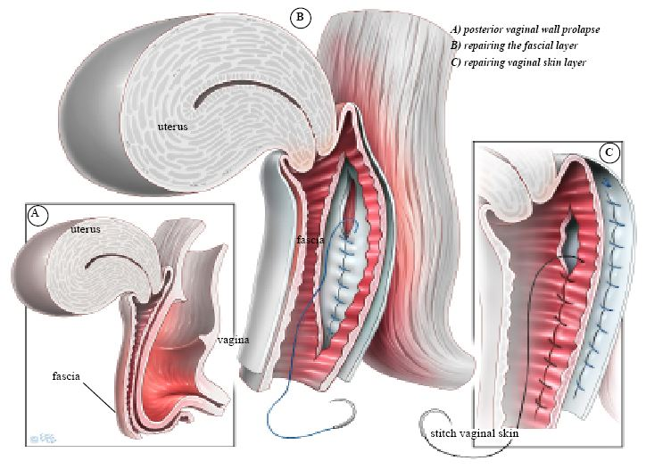 Vaginal hysterectomy resulted in hernia repair against