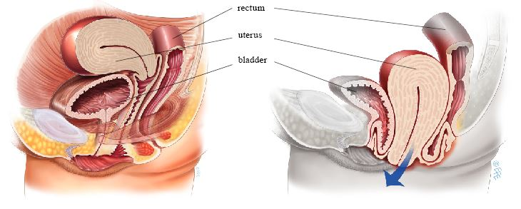 Made you vaginal hysterectomy resulted in hernia repair consider