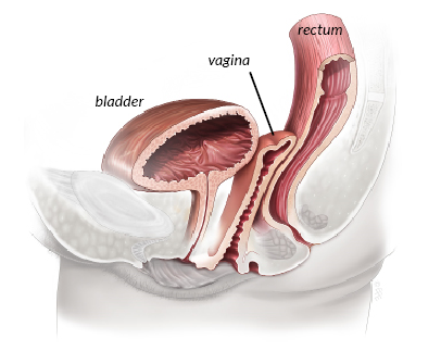 Vaginal Support Surgeries